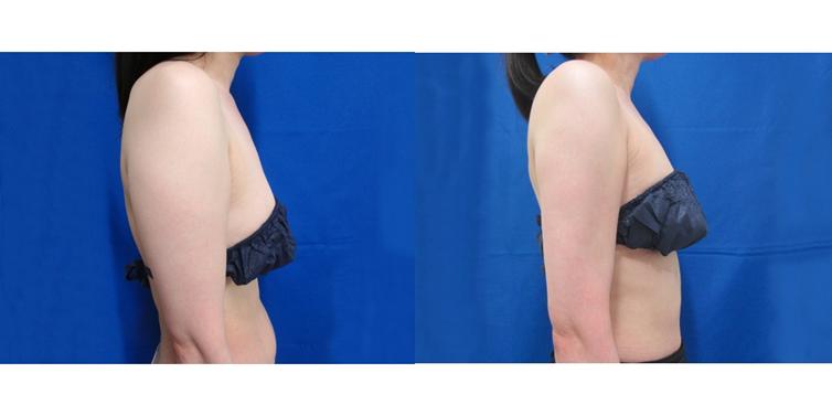 二の腕・振袖の脂肪吸引