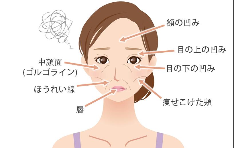 ナチュラルファイバーの効果ナチュラルファイバー(脂肪注入)は、ご自身のお腹や太ももの脂肪を一部吸引し、その脂肪を顔の痩せこけた部分に注入することでふっくらハリのある皮膚に若返えらせる施術です。ヒアルロン酸注入と違い、生着した脂肪は吸収されることなく永続的なのも魅力の一つです。【適応の部位】額の凹み・目の上の凹み・目の下の凹み・中顔面(ゴルゴライン)・ほうれい線・痩せこけた頬・唇